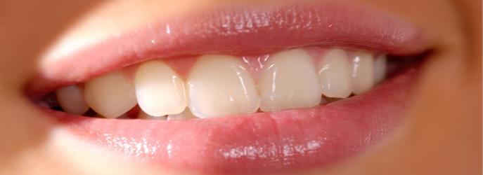 Quelle est la différence entre un dentiste et un orthodontiste ?